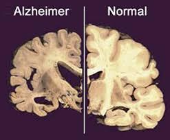 Alzheimer17