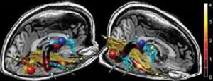 brain103