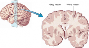 Brain_Cortex_Harvard-450x244
